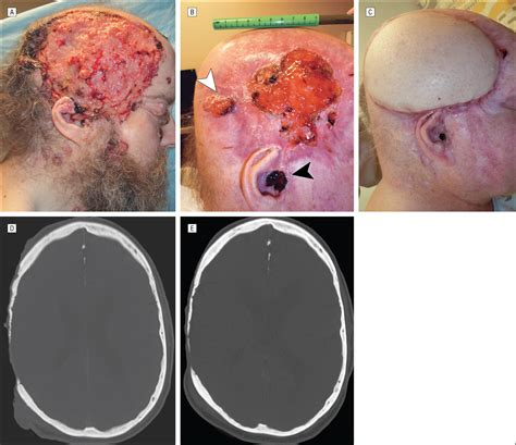Surgical Excision After Neoadjuvant Therapy With