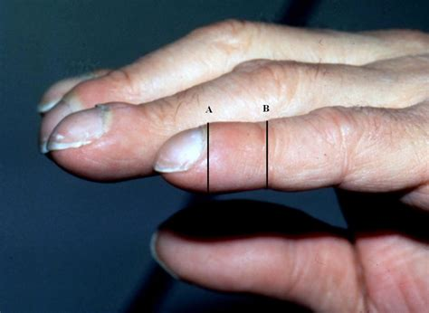 Are Your Nails Trying To Tell You Something?