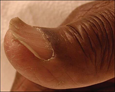 Evaluation of Nail Abnormalities - - American Family Physician